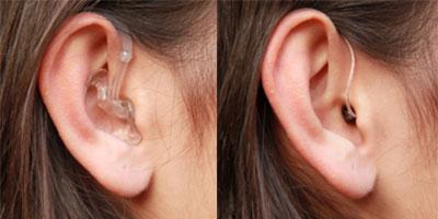 hinter dem ohr geraet - Hörsysteme