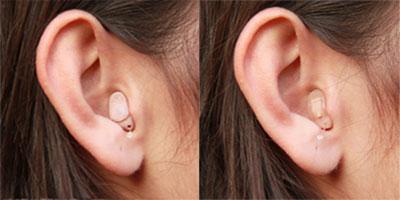 in.dem ohr geraet - Hörsysteme